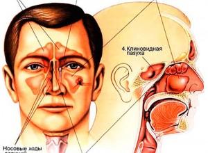 МРТ пазух носа в Чертаново