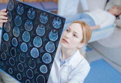 МРТ при сотрясении головного мозга