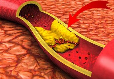 Закупорка кровеносных сосудов
